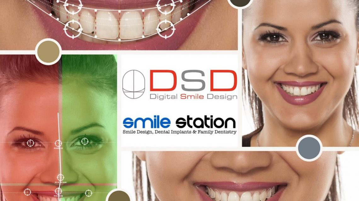 Digital_smile design